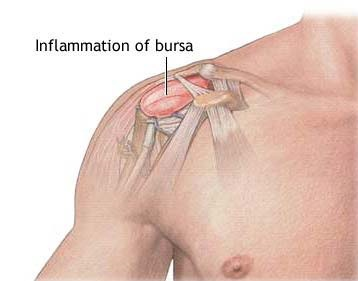 frozen shoulder vs bursitis